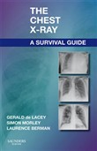 the chest x-ray: a surviv...
