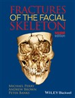 fractures of the facial s...