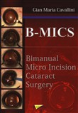 B-MICS Bimanual micro incision cataract surgery